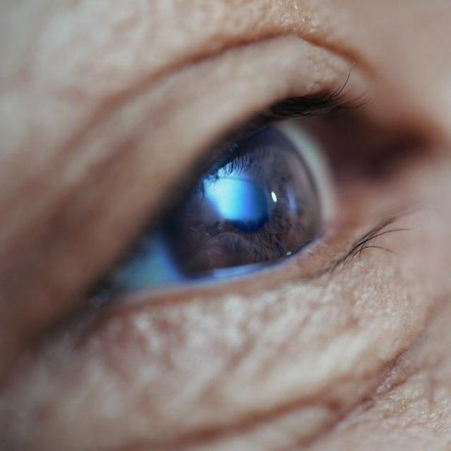 Los exámenes visuales pueden predecir el deterioro cognitivo relacionado con la enfermedad de Parkinson con 18 meses de antelación