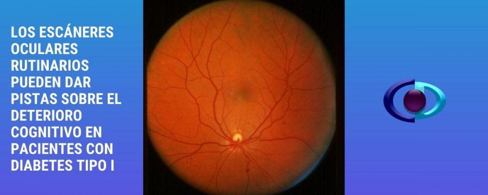 Los escáneres oculares rutinarios pueden dar pistas sobre el deterioro cognitivo en pacientes con diabetes tipo I