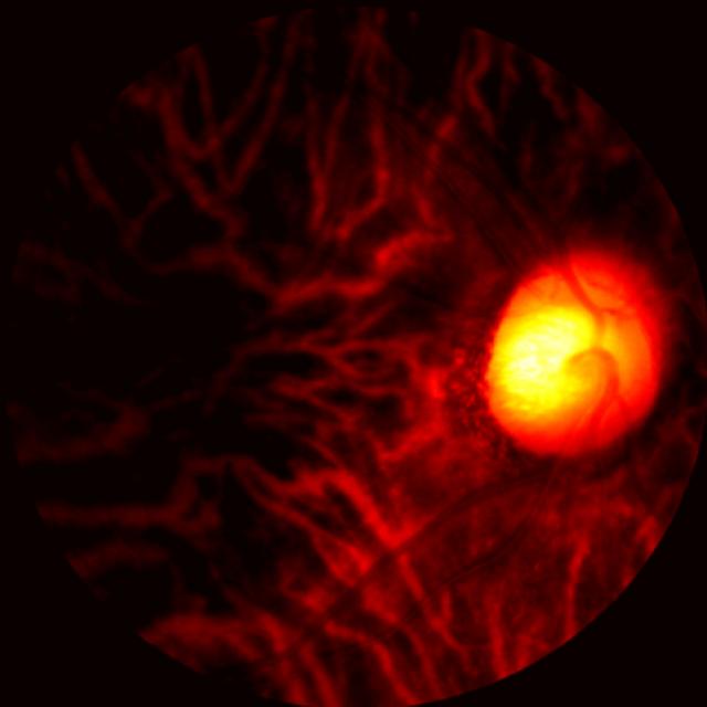 El escáner ocular arroja nueva luz sobre la enfermedad de Alzheimer